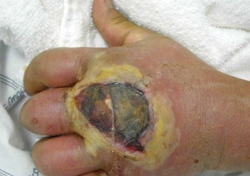 hand-mrsa-infection.jpg