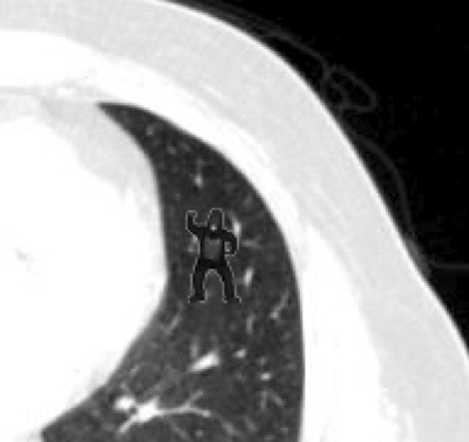 gorilla-radiologist.jpg